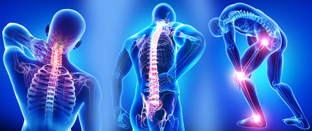 Backbone Pain - Bone Pain - Best Los Angeles Chiropractor